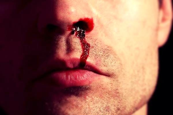 انواع خونریزی بینی کدامند؟