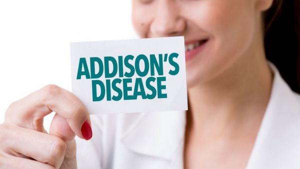 بیماری آدیسون چیست و چه علائمی دارد؟