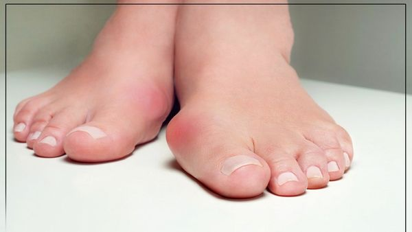 با این روش انحراف انگشت شست پا را درمان کنید
