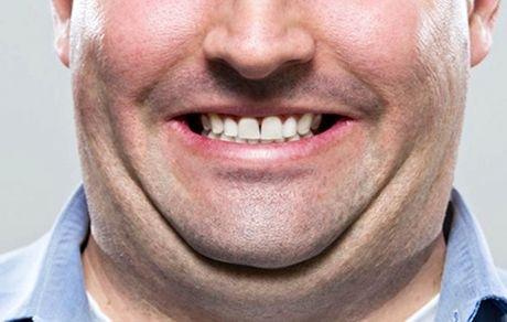 راه حل های کاربردی برای کاهش چربی صورت