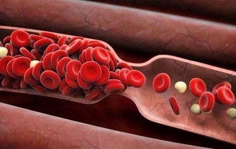 علائم لخته شدن خون که نمی دانستید