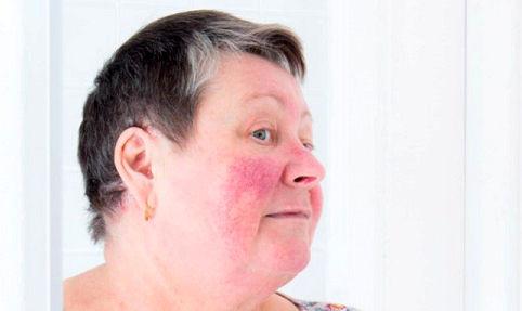 ۷ بیماری پوستی که با جوش اشتباه گرفته میشوند