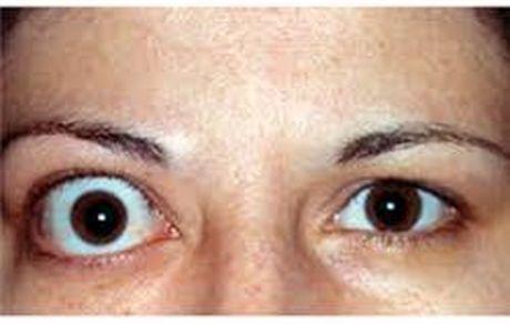 علائم و درمان تیروئید چشم