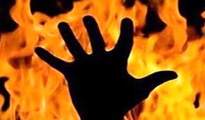 آتش زدن وحشتناک پسر مشهدی وسط کوچه خبرساز شد + جزئیات و عکس