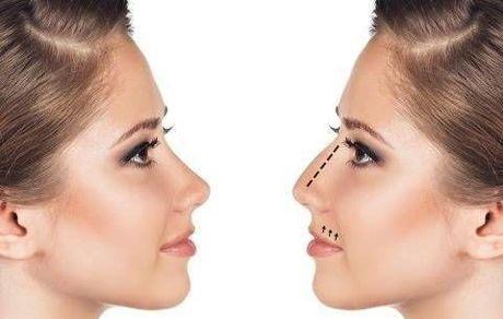 10 روزه در خانه بینی خود را کوچک کنید!