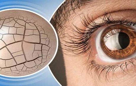 8 درمان طبیعی خشکی چشم