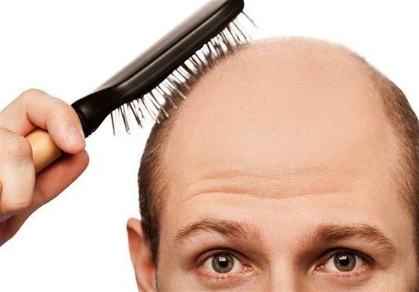 """""""ریزش مو"""" از عوارض کرونا/ ریزش چند تار مو در طول روز طبیعی است؟!"""