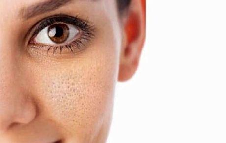 ۸ عادت غلط که موجب بزرگتر شدن منافذ پوست میشوند