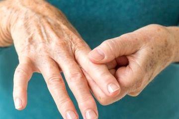 باورهای درست و نادرست در بیماری آرتریت روماتوئید