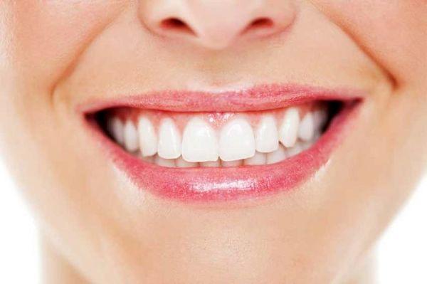 ترفندهایی برای داشتن دندان های سفید