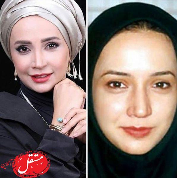 تغییرچهره شبنم قلی خانی + عکس