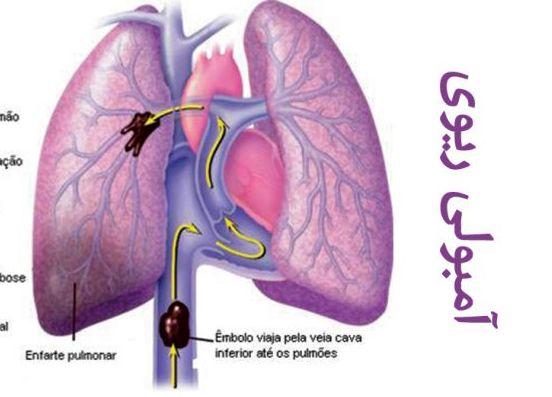 آمبولی ریه چیست و چگونه باعث مرگ مهرداد میناوند شد؟ + علائم و درمان