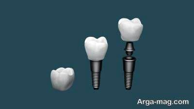 عوارض کاشت دندان