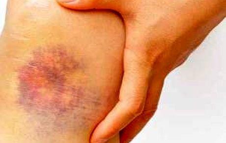 علت کبودی های ناگهانی چیست؟