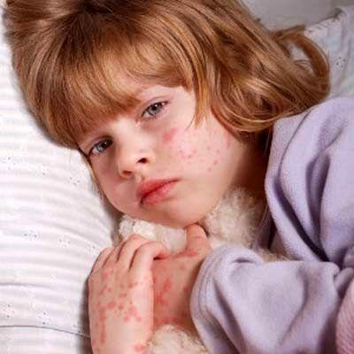 آلرژی کودکان را اینگونه درمان کنید!