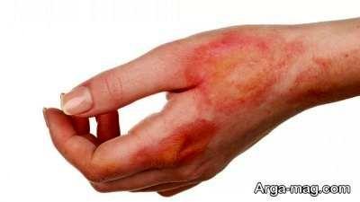 درمان سوختگی با زردچوبه